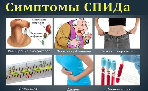 спид симптоматика