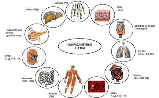 Системная склеродермия симптомы и признаки