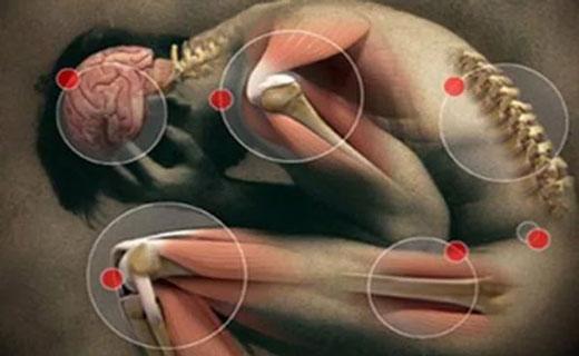 Спондилит симптомы и признаки (болезнь Бехтерева)