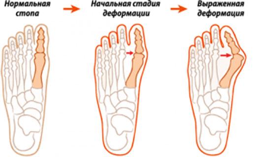 сустав стопы