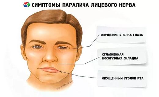 Неврит лицевой нерв лечение в домашних условиях