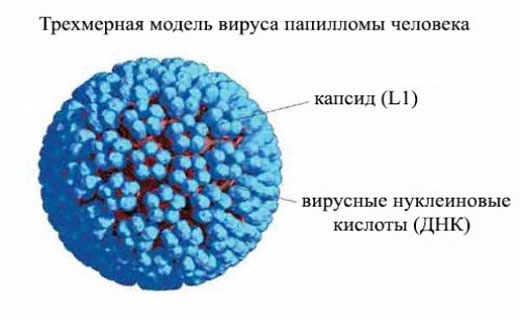 папиллома