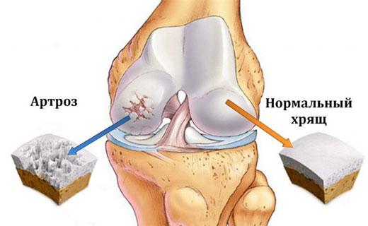 Восстановление суставов лекарство удаление суставная мышь
