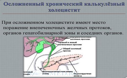 холецестит