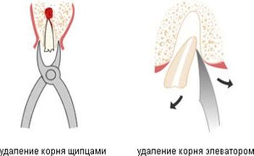 зачем удалять корень зуба