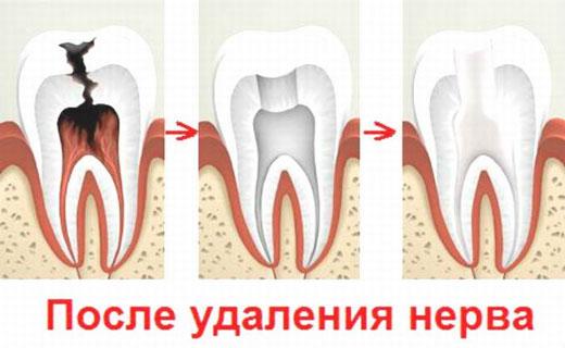 зачем удалять нерв зуба