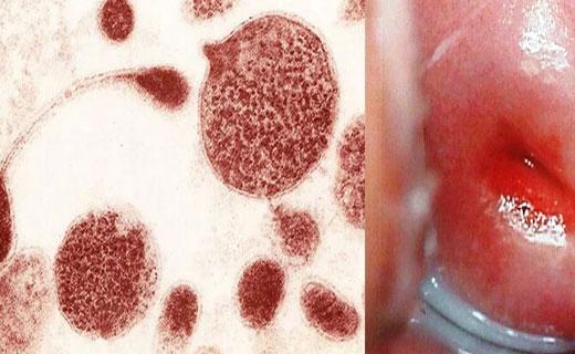 уераплазмоз