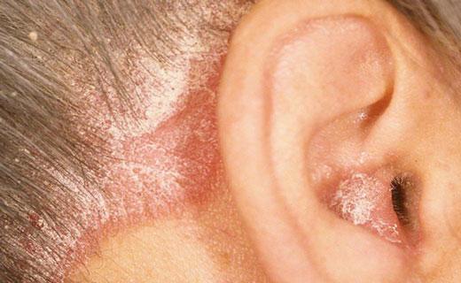 дерматит ушей