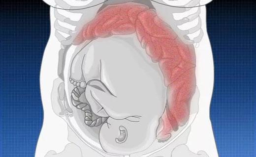 Запоры у беременных в первом триместре 12