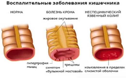 воспаления кишечника