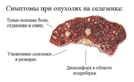 опухоль селезёнка