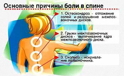 причины боли спины