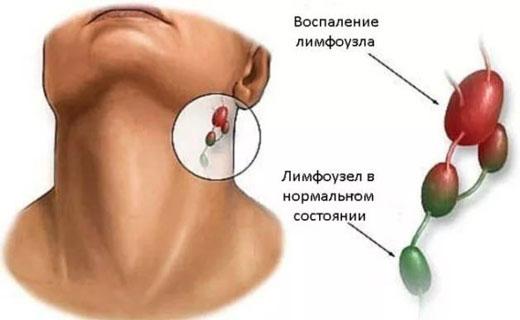лимфоузлы за ухом