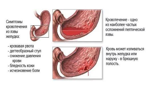 Язва пищевода, симптомы, проявления и методы лечения