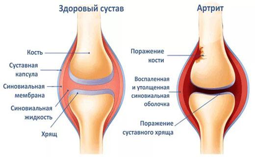 артрит коленный