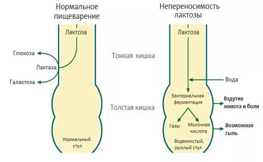 невосприятие лактозы