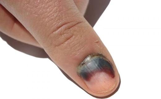 чернеют ногти