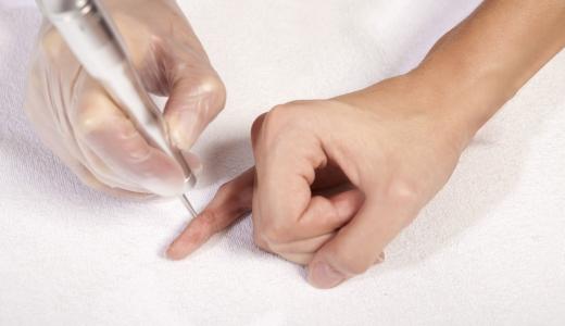 Деготь березовый применение для лечения