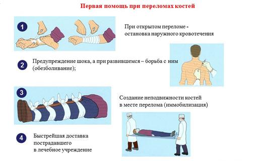 доврачебная помощь при переломе