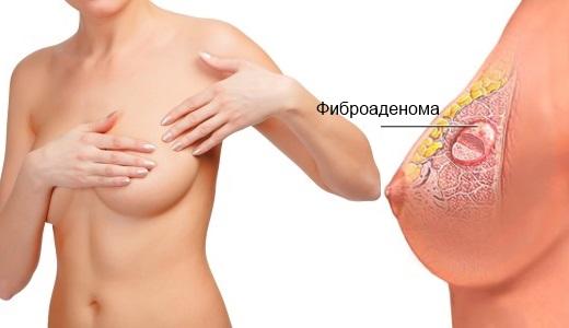 Лечение фиброаденомы народными средствами