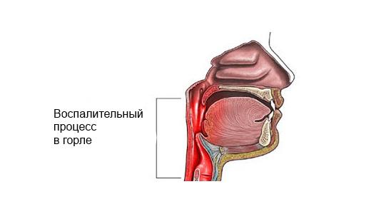 Причины почему болит горло