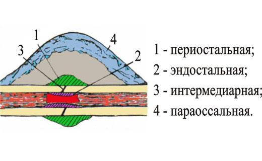 виды костной мозоли