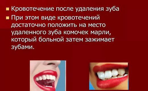 кровотечение зубов