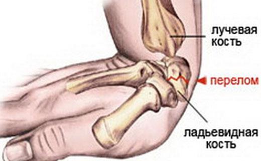 лучезапястный перелом