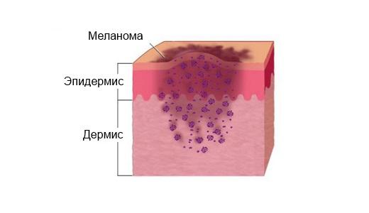 Меланома лечение народными средствами