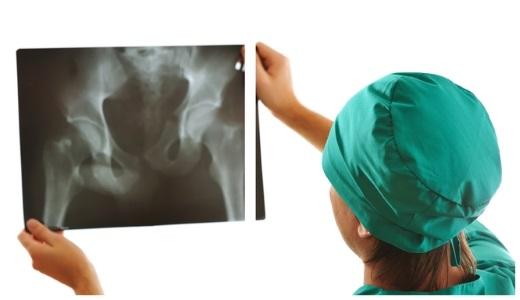 Лечение остеоартроза способами народной медицины