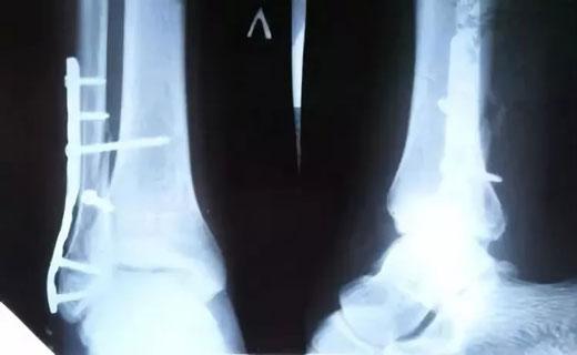 Упражнения для коленного сустава при переломе малой берцовой кости эндопротезирование суставов в курске