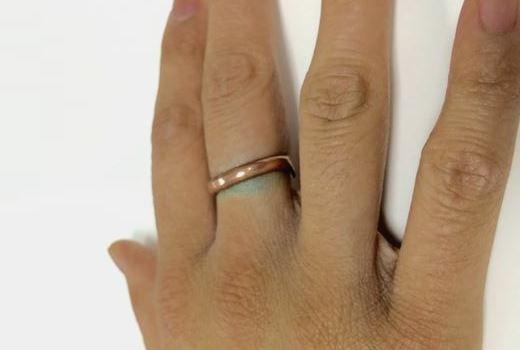 Почему темнеет кожа под золотым кольцом