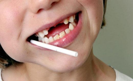почему ломаются зубы у детей