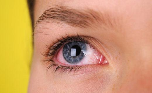 белок глаза красный