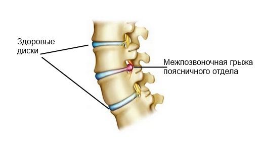 Почему болит спина на 8 месяце беременности