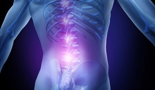 Лечение поясничного остеохондроза народными средствами