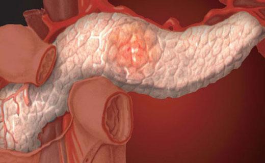 полип поджелудочной железы