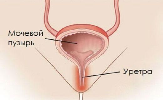 полип уретры у женщин