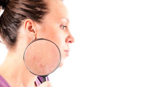 Хвороби шкіри обличчя фото і назви
