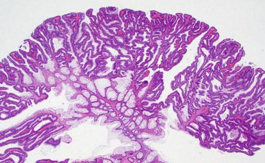 зубчатая аденома
