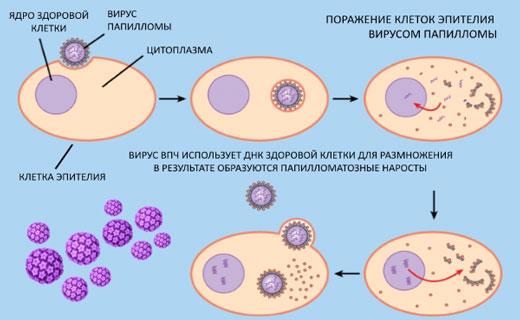вирус папалломы