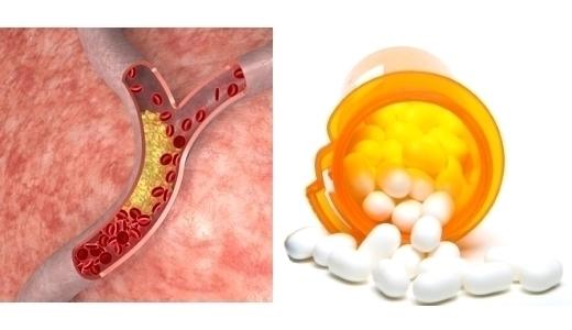 Симвастатин применение для лечения