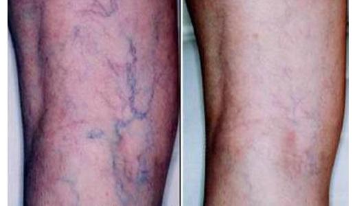 Лечение сосудистых звездочек на ногах способами народной медицины