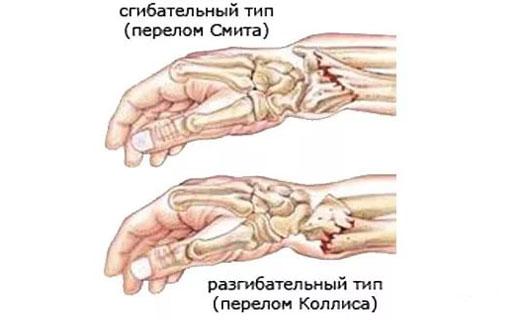 закрытый перелом лучевой кости