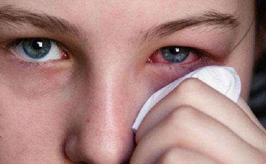 застудил глаз