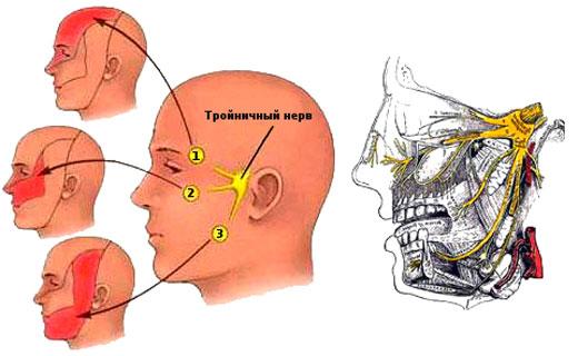 Лечение воспаления тройничного нерва в домашних условиях