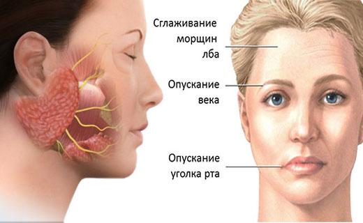 застужен лицевой нерв