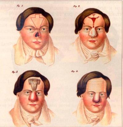 Боль после операции на голени
