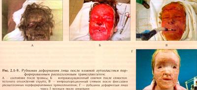 Лечение лямблиоза у детей схема отзывы