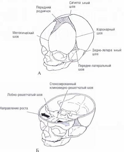 Схема черепных швов плода: А
